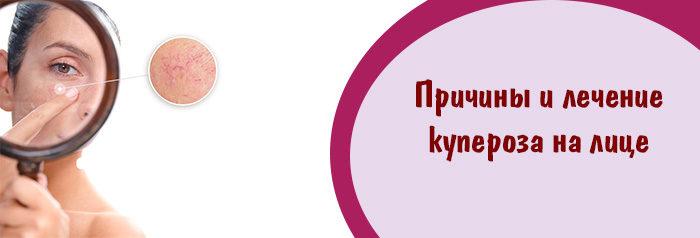 признаки и причины купероза способы лечения