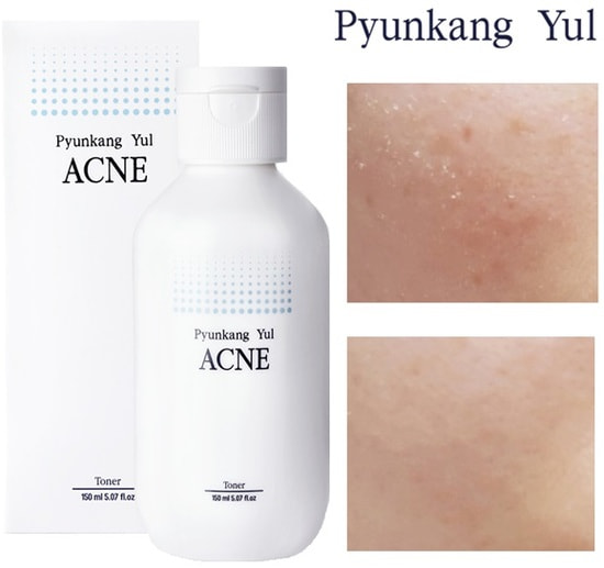 Тонер для проблемной кожи Acne Toner Pyunkang Yul (фото, Pyunkang Yul Acne Toner)